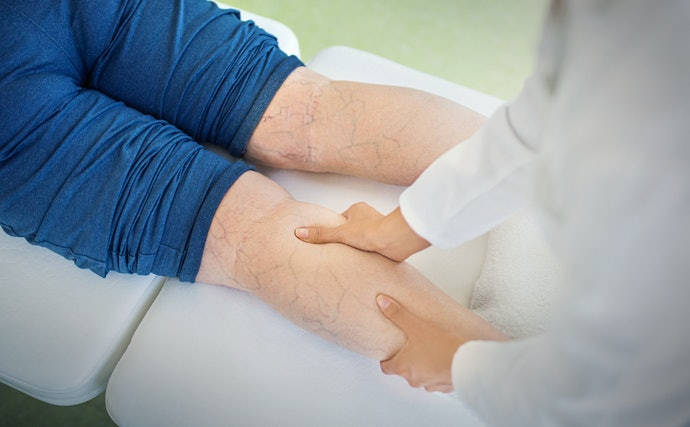 For Mild Symptoms, Use 20–30mmHg of Compression for Your Socks